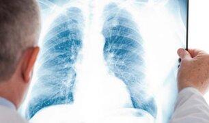 Según el Minsa, en lo que va del 2020 han muerto 148 personas por neumonía