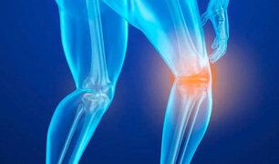 Cifras alarmantes, aumentan casos de Osteoporosis en el Perú