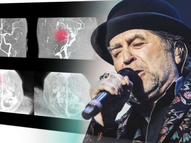 Joaquín Sabina fue operado por un derrame cerebral tras caída de escenario