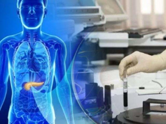 Israel: crean páncreas artificial que sustituirá la insulina para diabéticos