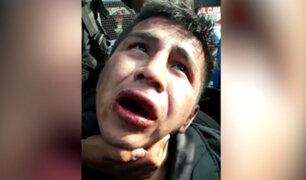 Los Olivos: vecinos casi linchan a sujeto acusado de asaltar a mujer