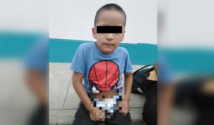 Piden urgente ayuda para niño que nació con malformación congénita