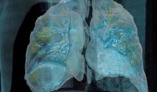 Coronavirus: animación en realidad virtual muestra cómo ataca el COVID-19 a los pulmones
