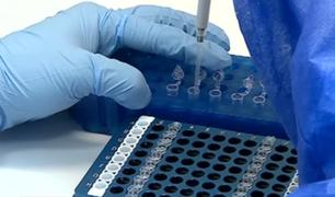 Contraloría detectó que clínicas privadas cobraron a sus pacientes por pruebas moleculares siendo un servicio gratuito del INS