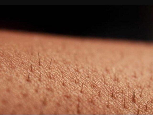 Francia: dermatólogos alertan sobre manifestación cutánea asociada al COVID-19