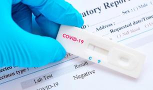 Coronavirus en Perú: Corea del Sur donó 50 mil pruebas rápidas