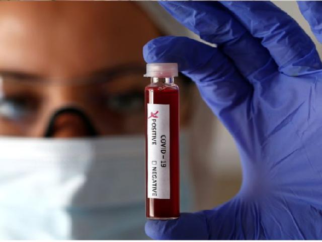 Aprueban protocolo para usar plasma de recuperados con coronavirus para curar a infectados