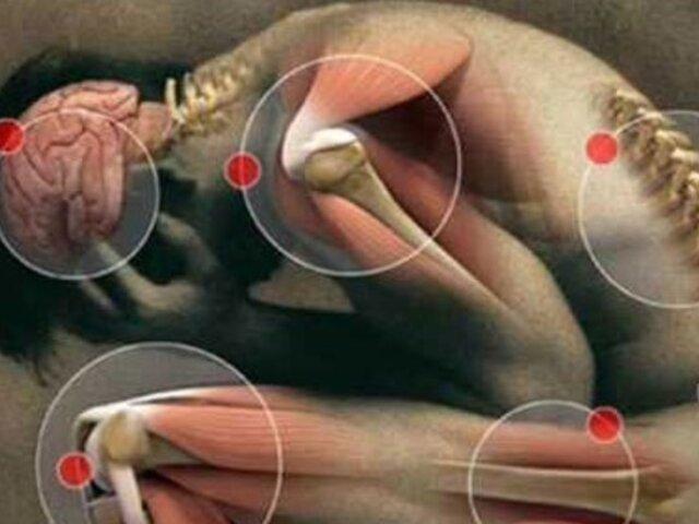 Fibromialgia: conoce la enfermedad 'de las emociones no expresadas'