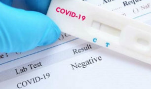 "Ministra Mazzetti: ""OMS no ha prohibido pruebas rápidas para detectar covid-19"""