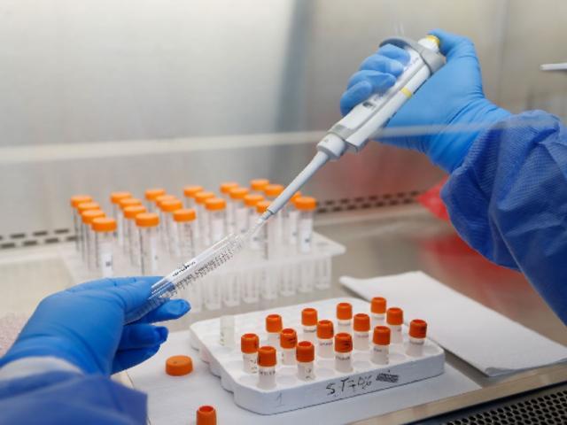 Vacuna Covid-19: ensayos clínicos a segundo grupo de voluntarios en UNMSM inician este martes