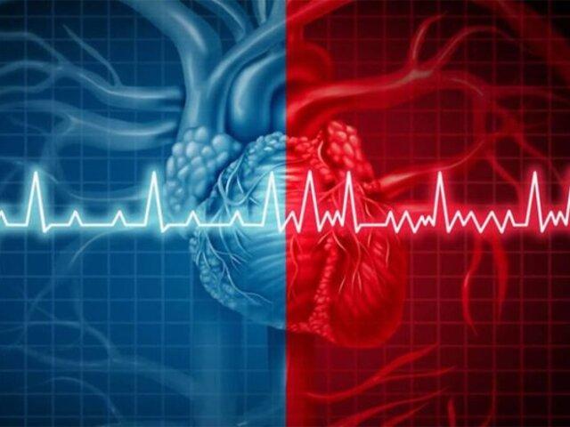 Arritmias cardíacas serían las secuelas más peligrosa de la COVID-19, según expertos