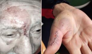 SJM: anciano sufrió grave accidente tras tropezar con un tubo mal colocado en la vía pública