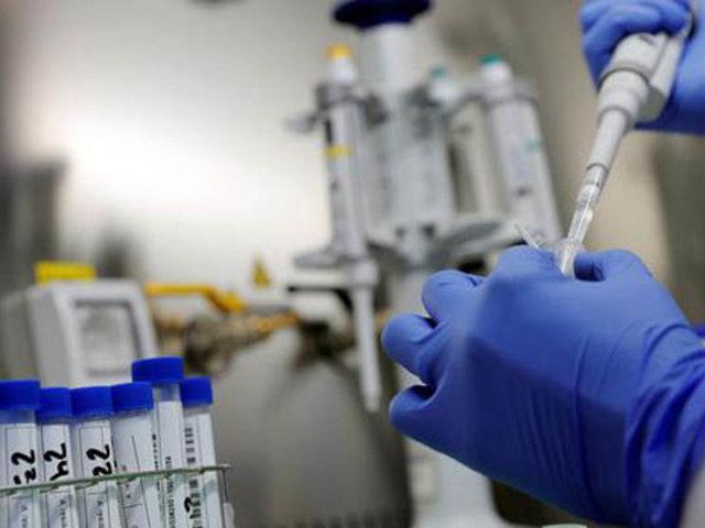 Informan de dos posibles casos de reinfección de Covid-19 en Lambayeque