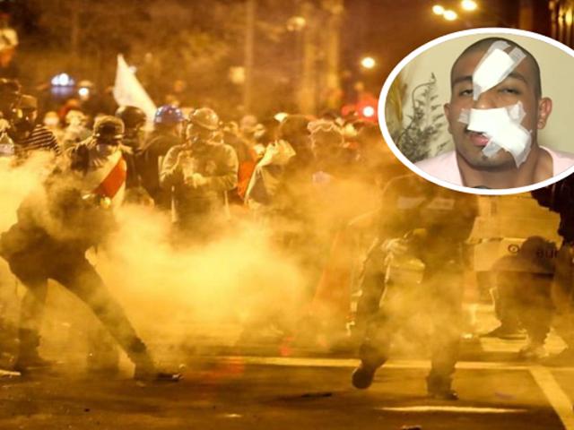Joven quedó con el rostro desfigurado tras ser impactado por bomba lacrimógena durante marcha