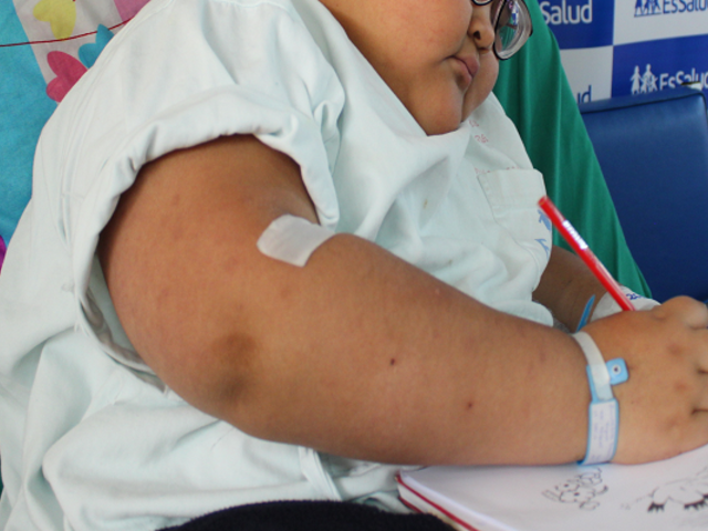Sedentarismo infantil en pandemia aumenta el riesgo de sobrepeso y otros problemas de salud
