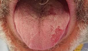 COVID-19: identifican nuevos síntomas como alteraciones en manos, pies y lengua