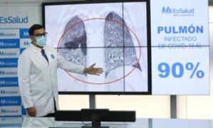 En cuatro días el COVID-19 puede dañar el pulmón, según EsSalud