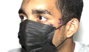 Los Olivos: desfiguran rostro a joven con una botella rota por resistirse a robo