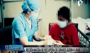 INSN San Borja: recién nacida supera graves quemaduras tras incendio en su vivienda