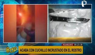 Huancayo: sujeto incrusta un chuchillo en la cara de un hombre en estado de ebriedad