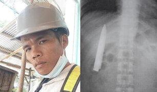 Hombre vive desde hace más de un año con un cuchillo dentro de su pecho por error médico