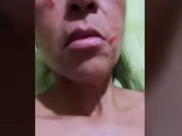 VES: mujer denuncia a ambulantes de agredirla tras pedirles que se retiren del frontis de su casa