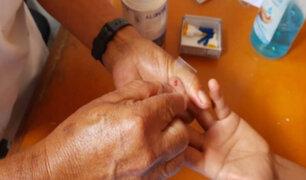 Loreto: casos de Malaria han disminuido en 75,4 % entre 2017 y 2020