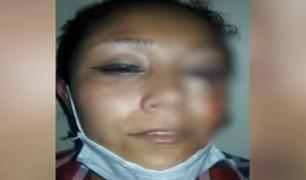 El Agustino: mujer agredida por su pareja está a punto de perder un ojo