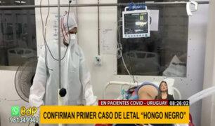 Hongo negro en Uruguay: Alarma por primer caso en paciente con covid-19