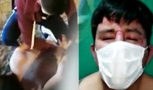 Ladrón se desnuda para evitar detención policial