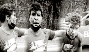 Miraflores: atacan violentamente a profesor de surf con un bate de béisbol