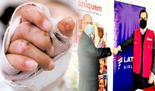 Niños que sufran lesiones por quemaduras podrán viajar gratis a Lima para atenderse