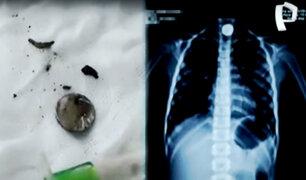 Chimbote: extraen pila alojada en el esófago de una niña