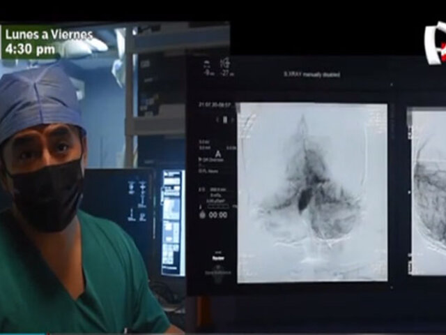 INSN San Borja: menor con aneurisma recupera movimientos tras delicada intervención
