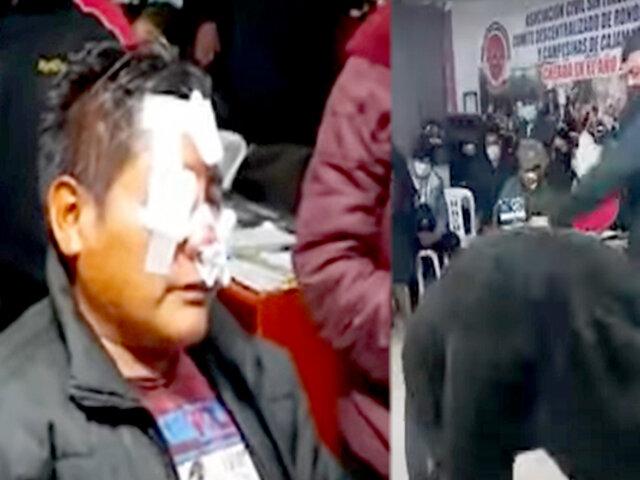 Cajamarca: rondas castigan a sujeto que desfiguró a su víctima