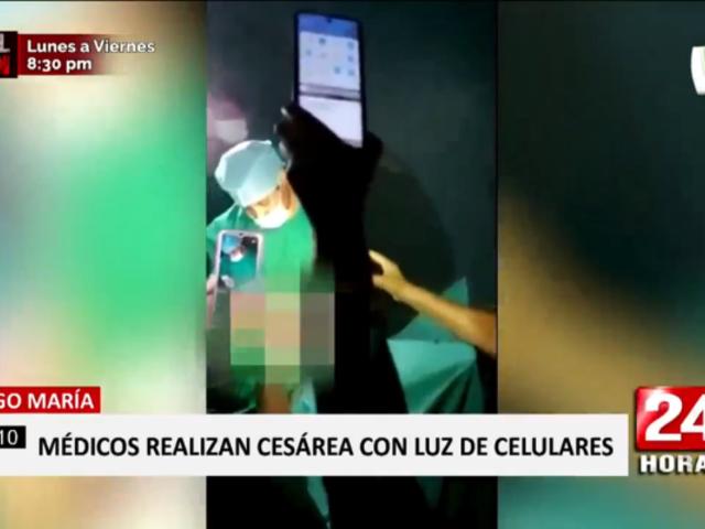 Tingo María: médicos operaron a paciente alumbrados por sus celulares