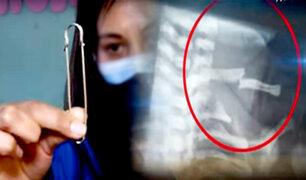 Hospital Cayetano: médicos sugieren un imperdible para tratar fractura de clavícula de bebé