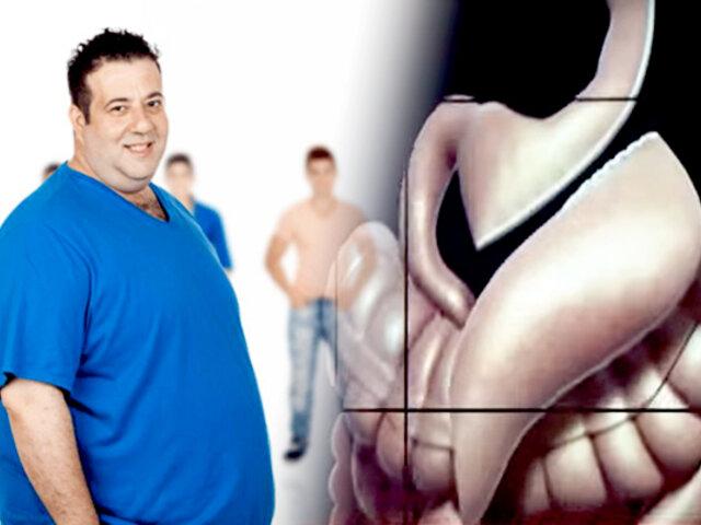 Baje de peso con la manga gástrica: conozca los beneficios de esta operación